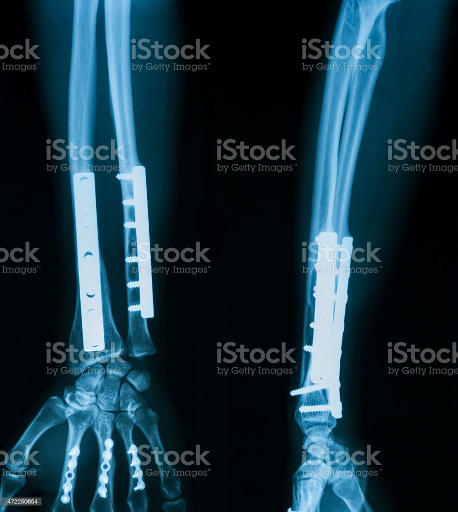 X-ray image of broken forearm,lateral view. stock photo
