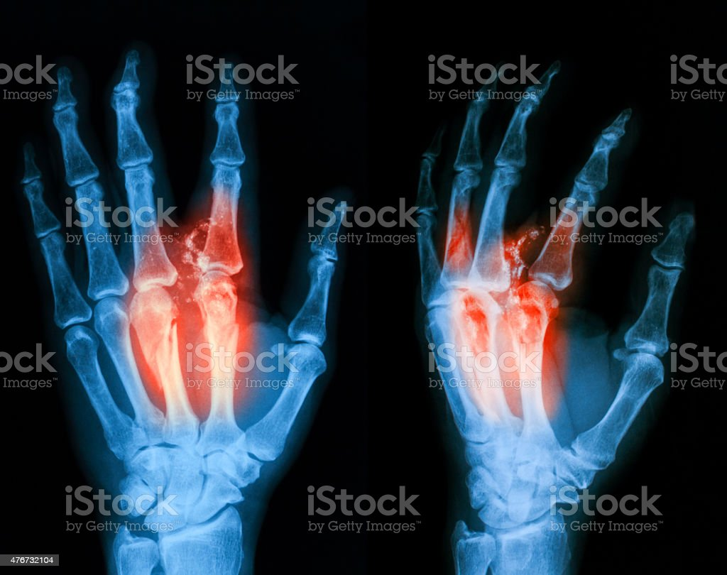 X-ray image of broken hand, PA and lateral view. stock photo