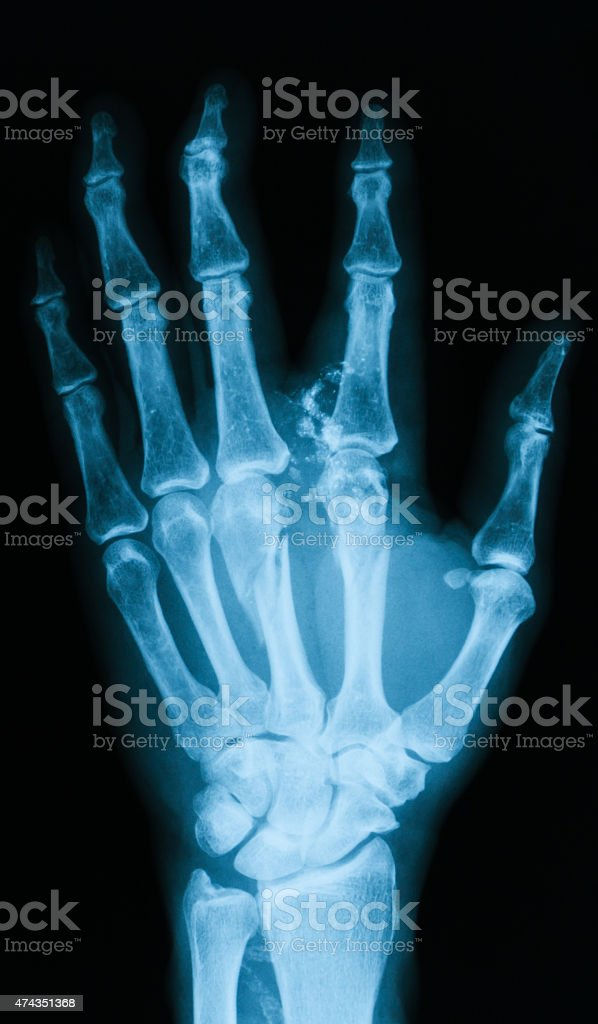 X-ray image of broken hand, PA view. stock photo