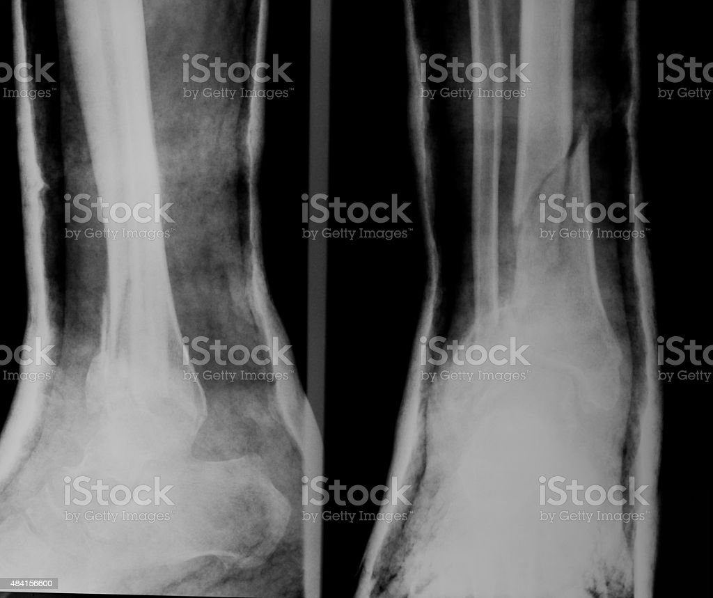 X-ray image of broken leg with plaster cast stock photo