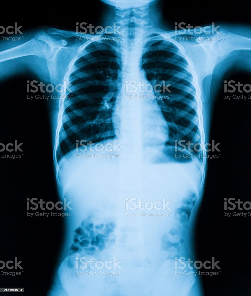 X-ray image of chest and abdominal pain. stock photo