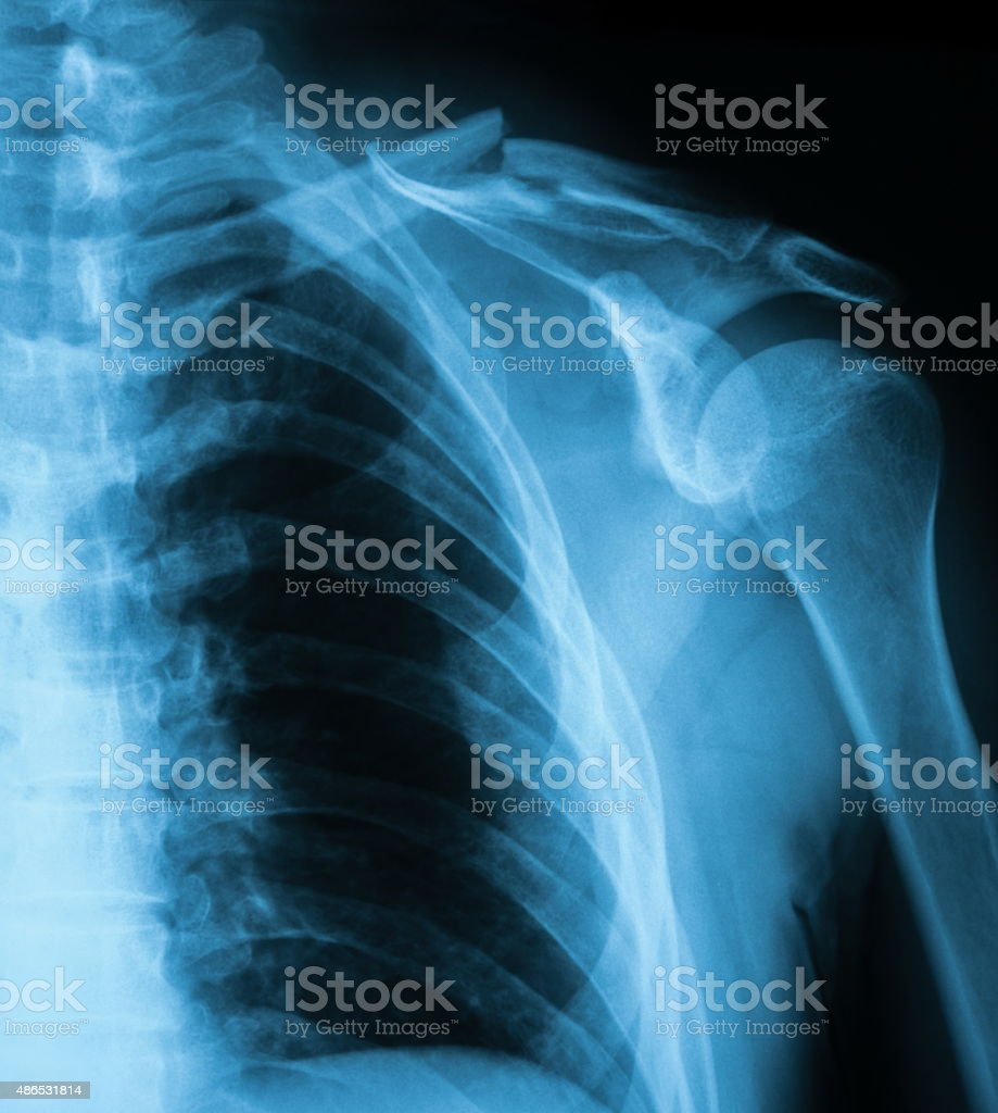 X-ray image of clavicle fracture, AP view. stock photo