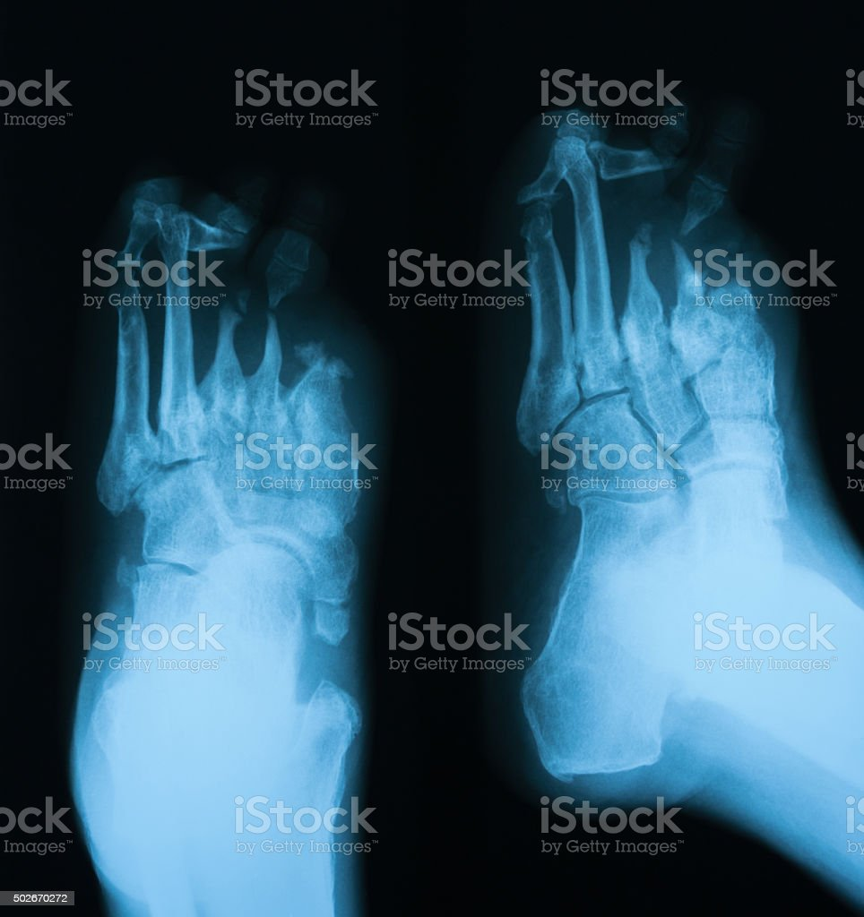 .X-ray image of diabetic foot, AP and oblique view. stock photo