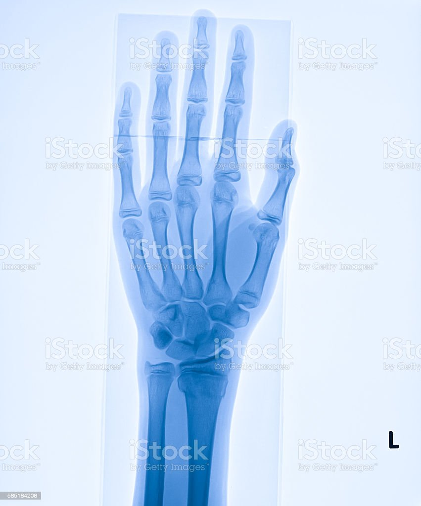 X-ray image of distal forearm include hand stock photo
