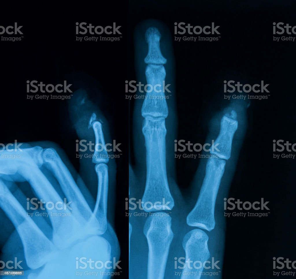 X-ray image of distal of little fingers fracture. stock photo