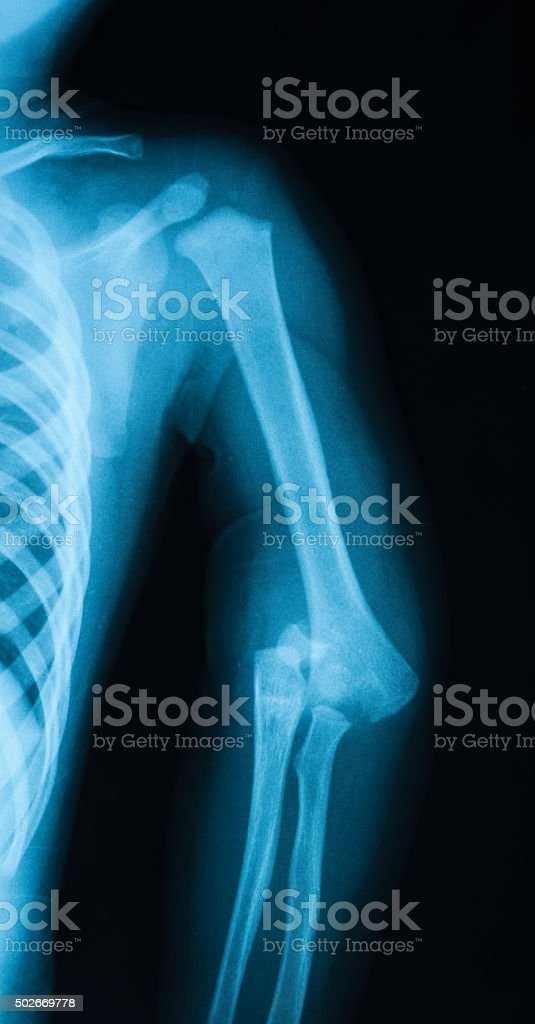 X-ray image of elbow showing fractures and dislocation of elbow. stock photo