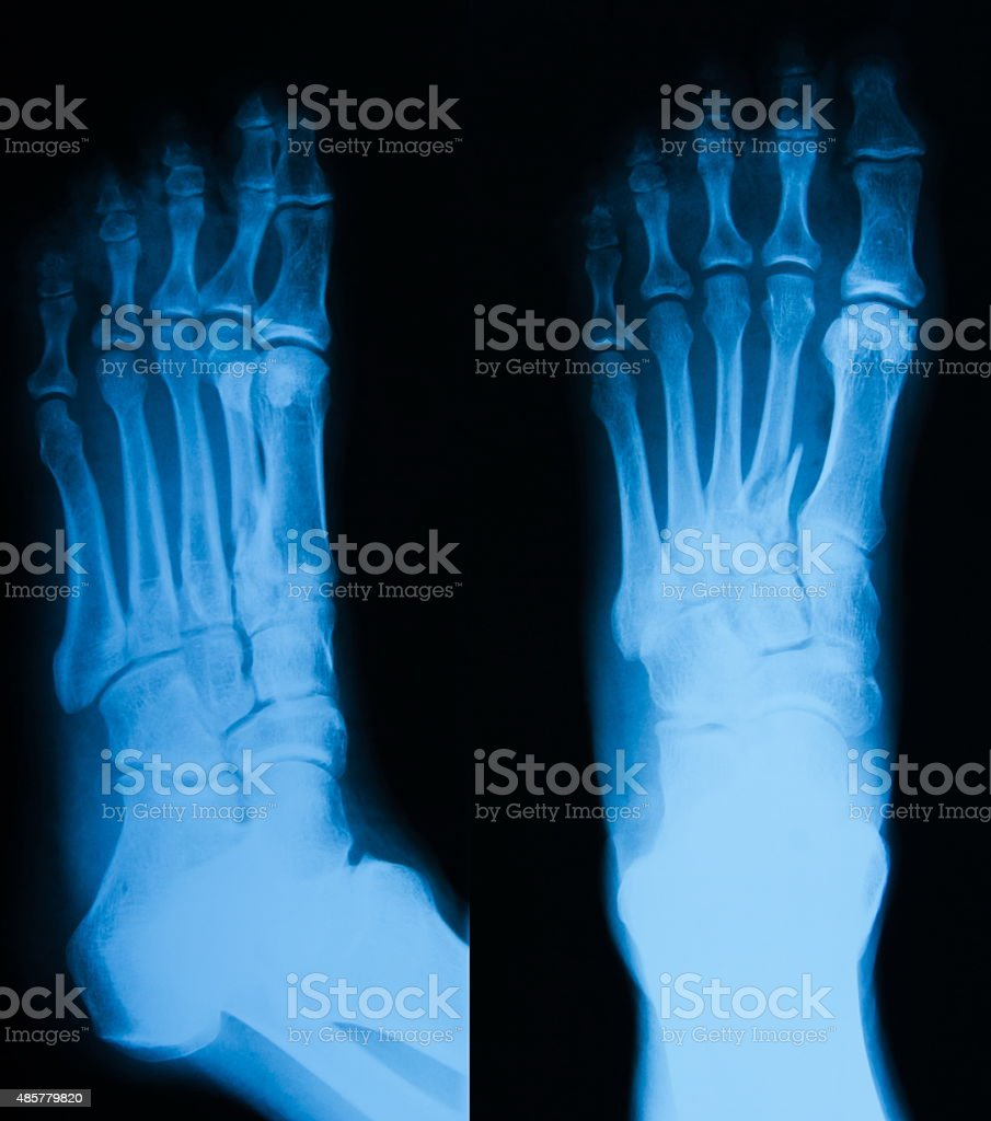 X-ray image of foot fracture, AP and Lateral view stock photo