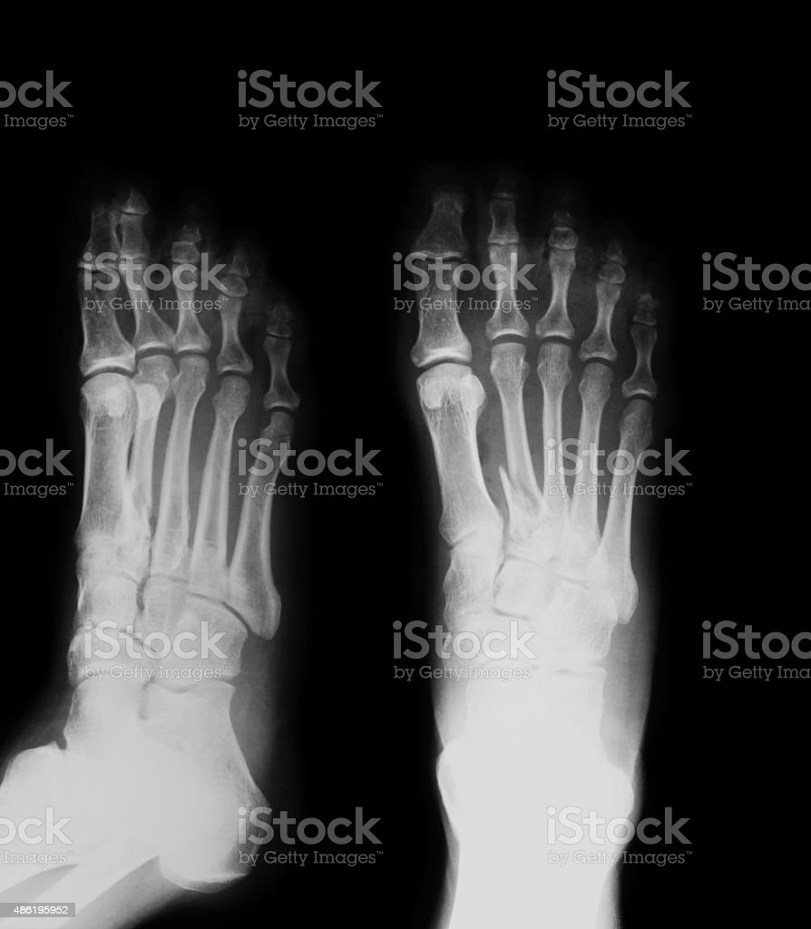 X-ray image of foot fracture, AP and oblique view. stock photo