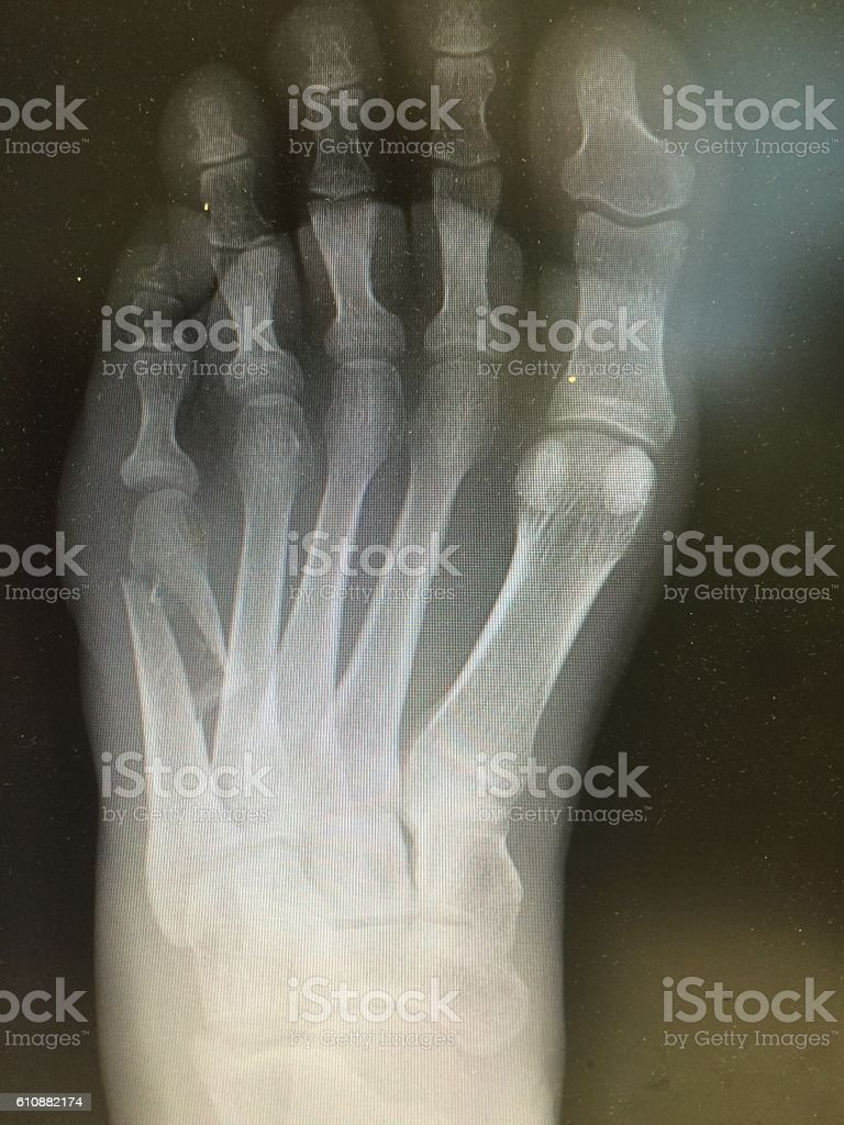 X-ray image of foot fracture, AP view stock photo