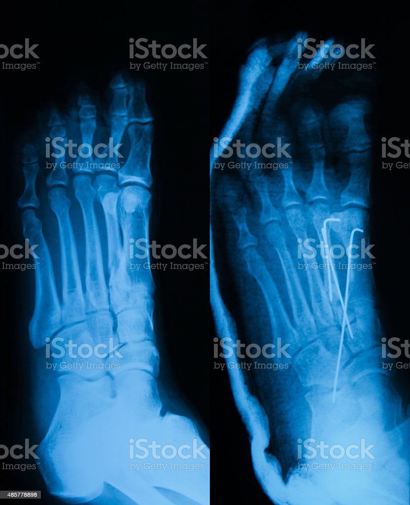 X-ray image of foot fracture, Obliqe view. stock photo