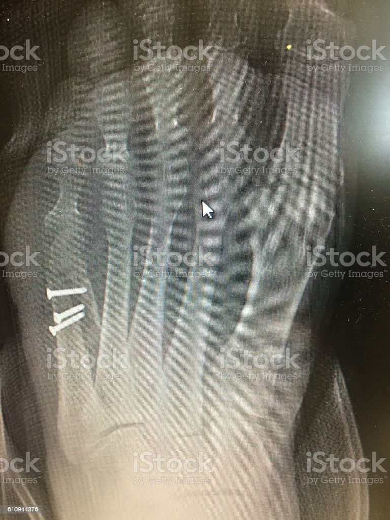 X-ray image of foot fracture with Failed Fixation, AP view stock photo