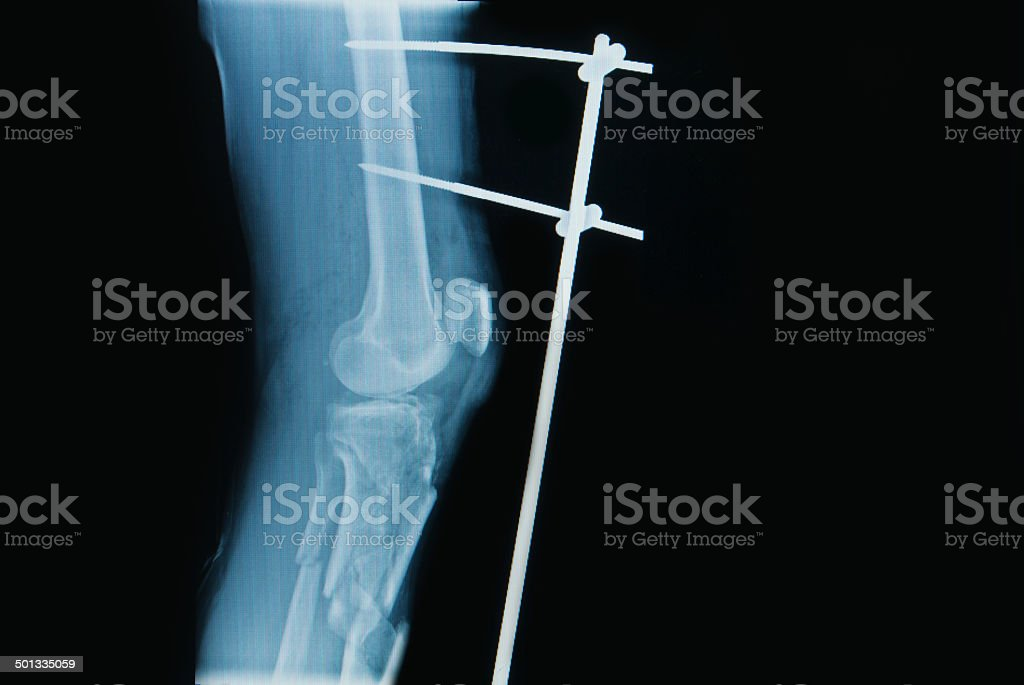 x-ray image of fracture leg ( tibia ) stock photo