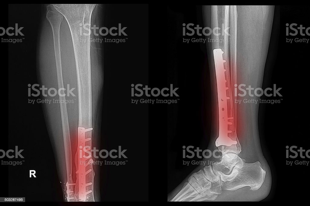 x-ray image of fracture leg (tibia )with implant stock photo
