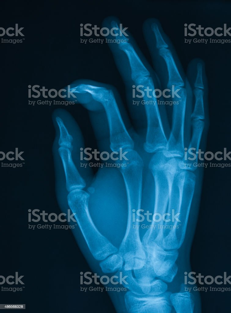 X-ray image of hand, PA view, stock photo