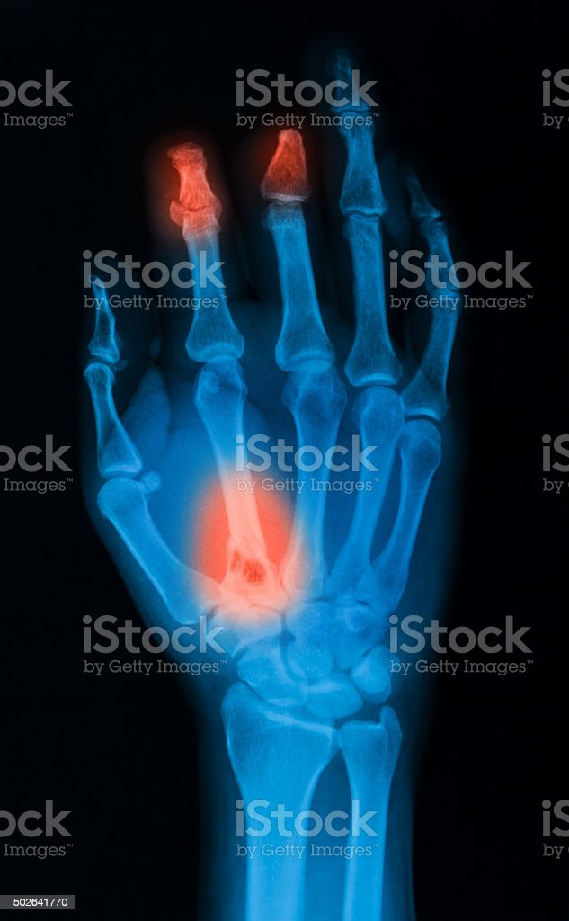 X-ray image of hand showing amputated fingers. stock photo