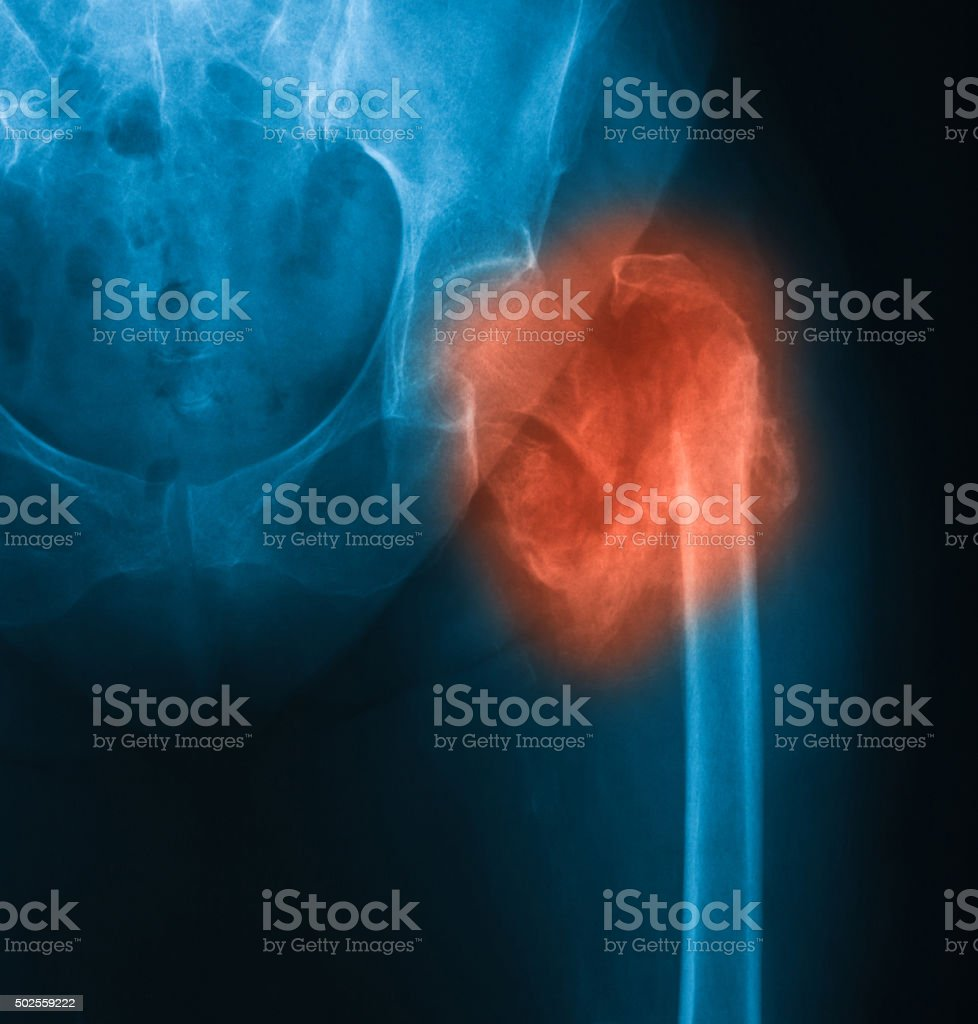 X-ray image of hip, AP view. stock photo