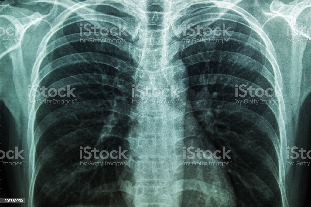 X-Ray Image Of Human Chest for a medical diagnosis. stock photo