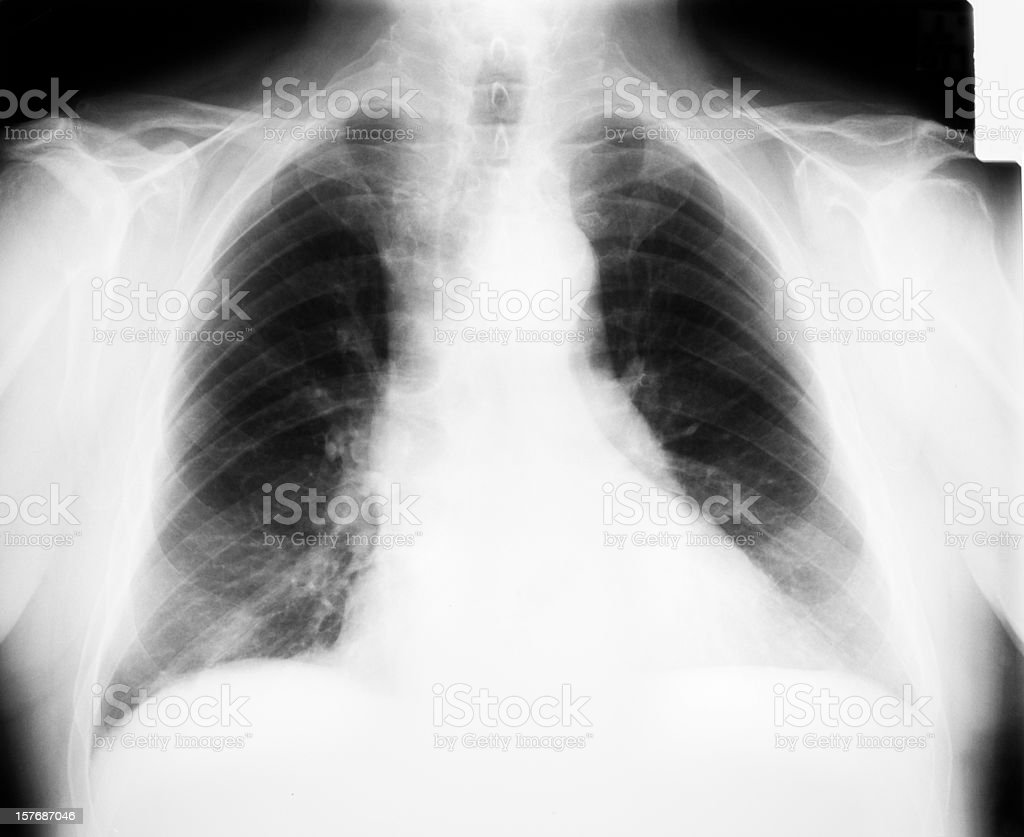 X-ray image of human chest royalty-free stock photo