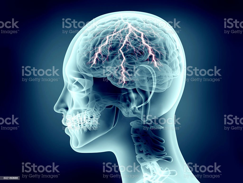xray image of human head with lightning stock photo