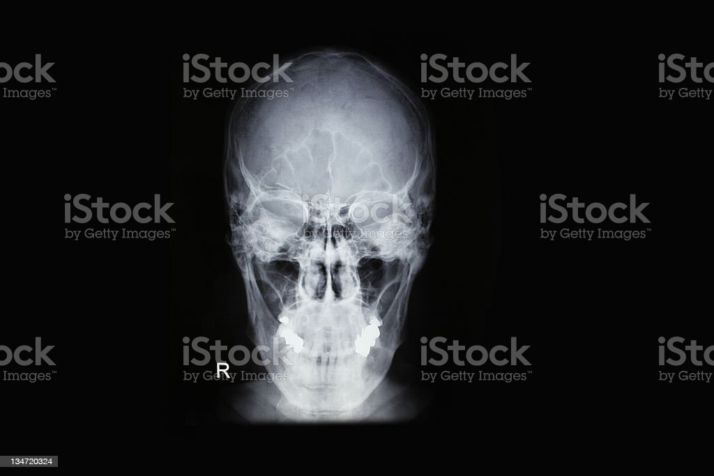X-ray image of human skull,front view stock photo