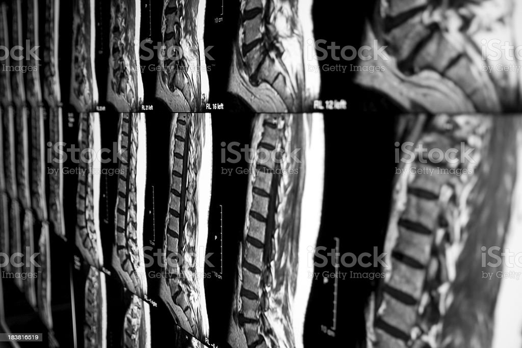 X-ray image of human vertebra royalty-free stock photo