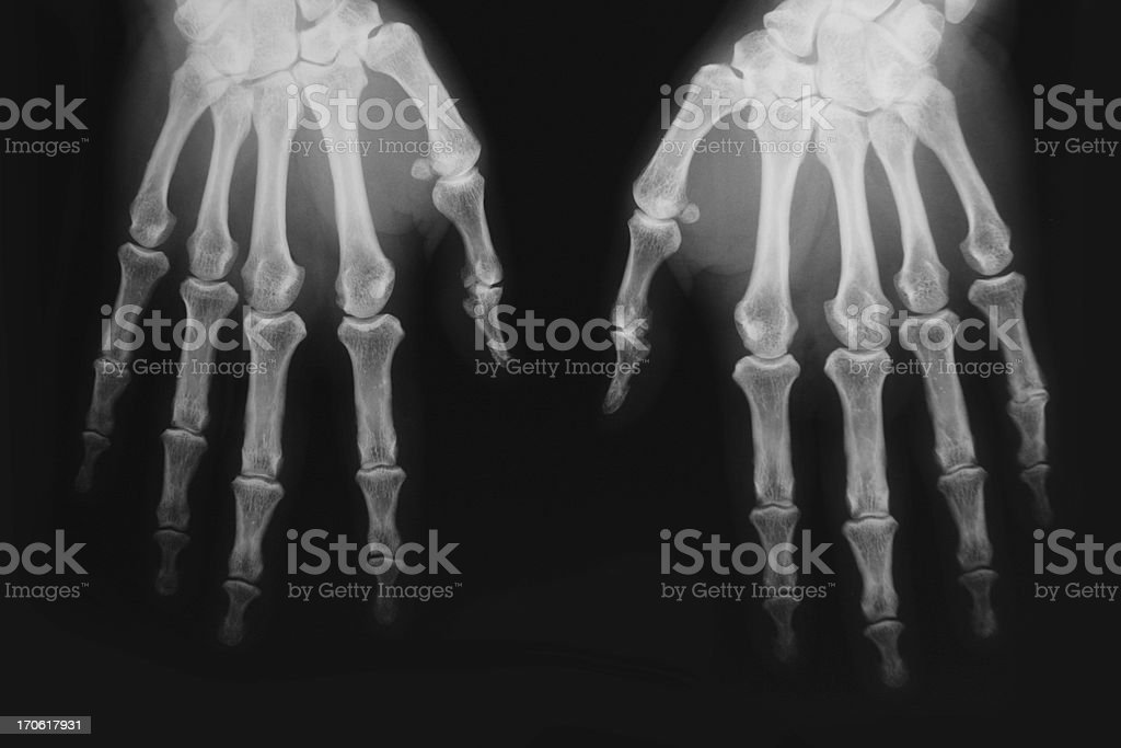 X-ray image of human wrist with arthritis royalty-free stock photo