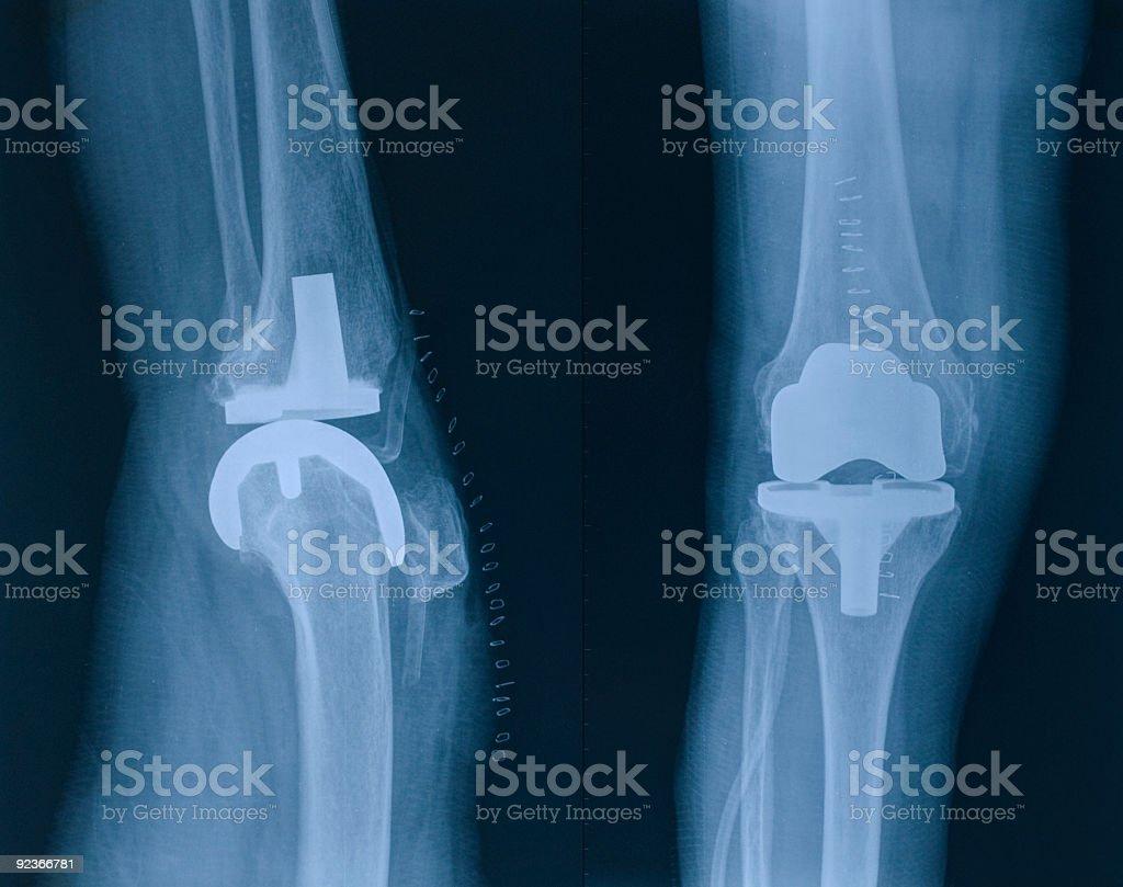 x-ray image of knee stock photo