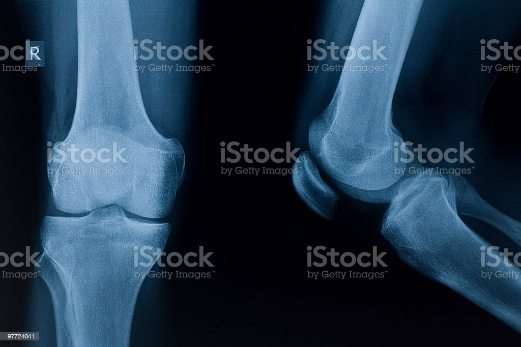x-ray image of knee royalty-free stock photo