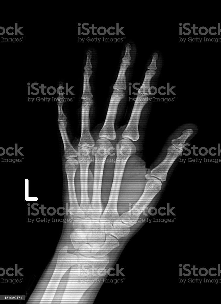 Xray image of left hand and wrist stock photo