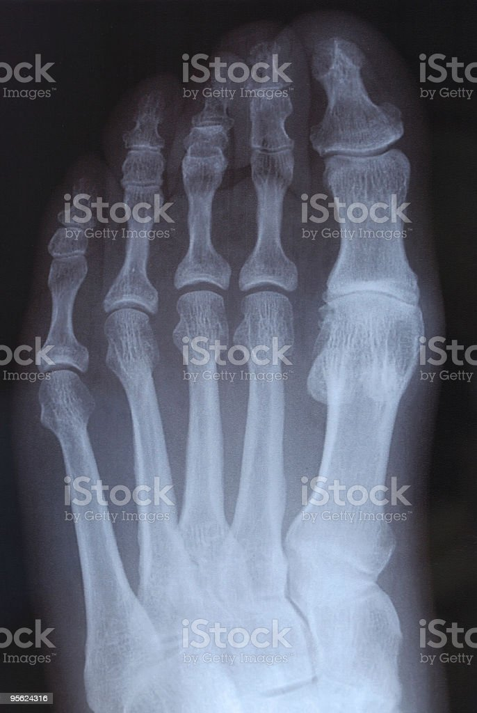 X-ray image of left metatarsals royalty-free stock photo