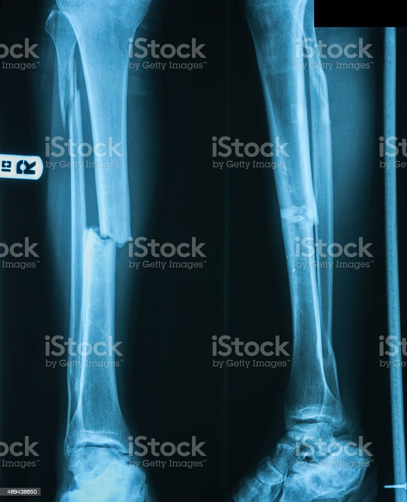 X-ray image of leg fracture with wooden splint. stock photo