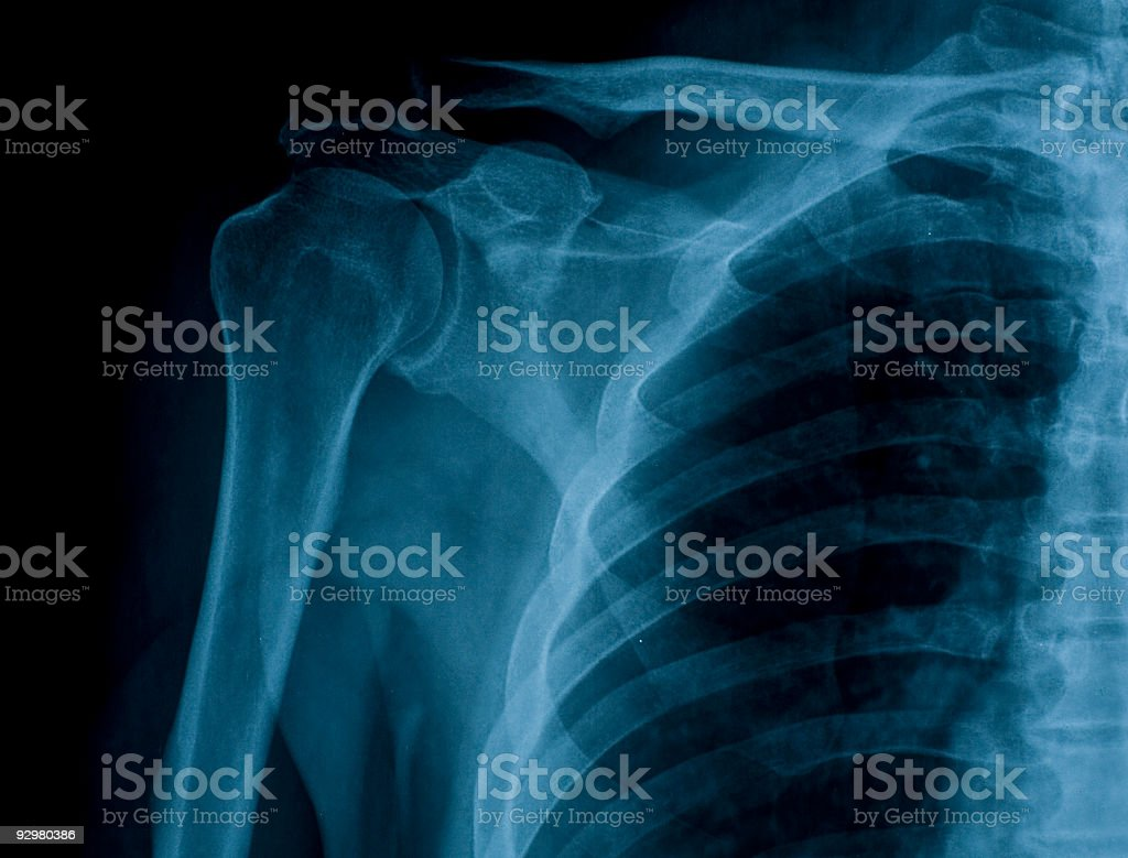 x-ray image of right shoulder royalty-free stock photo