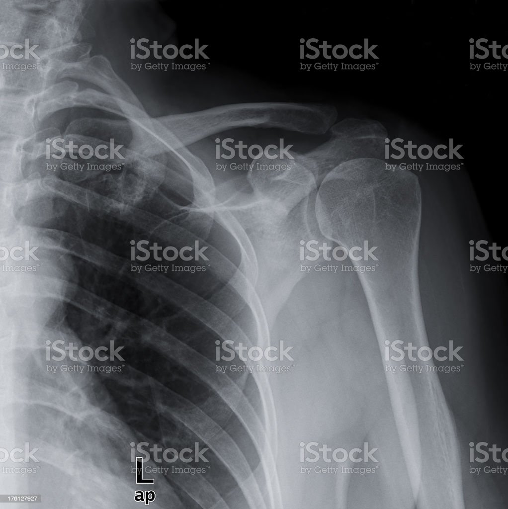 X-ray image of shoulder stock photo