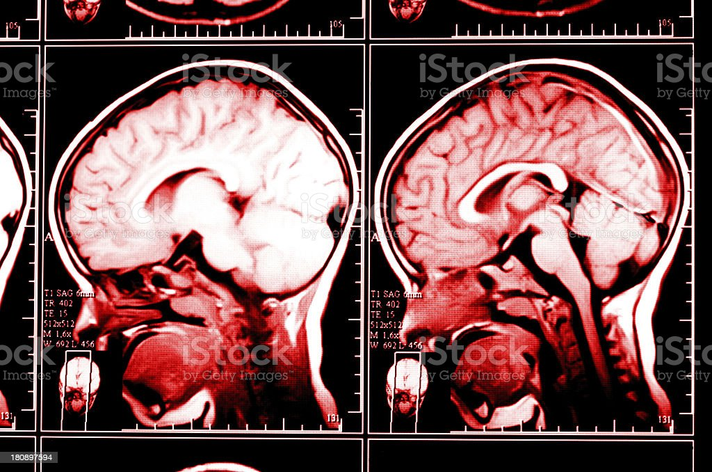 X-ray image of the brain computed tomography royalty-free stock photo
