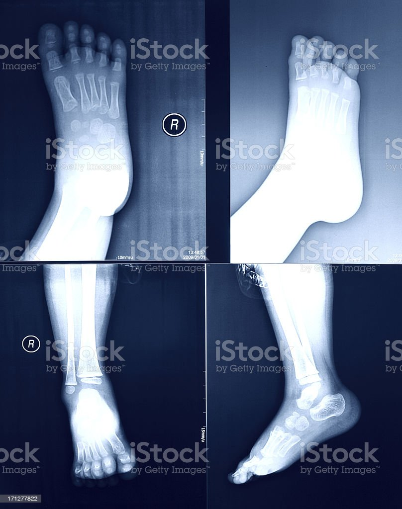 X-Ray image of the Foot. royalty-free stock photo