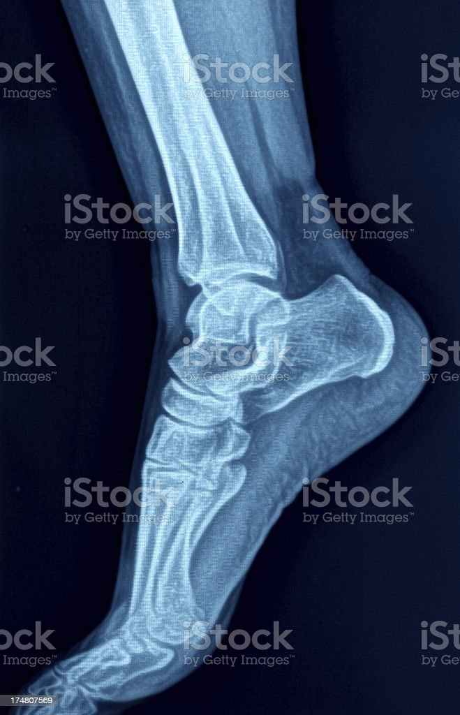 X-Ray image of the Foot royalty-free stock photo