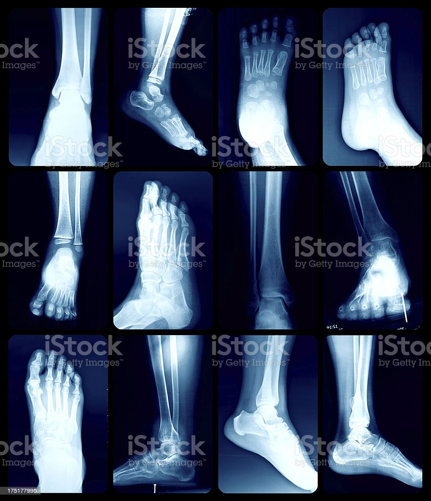 X-Ray image of the Foot. stock photo