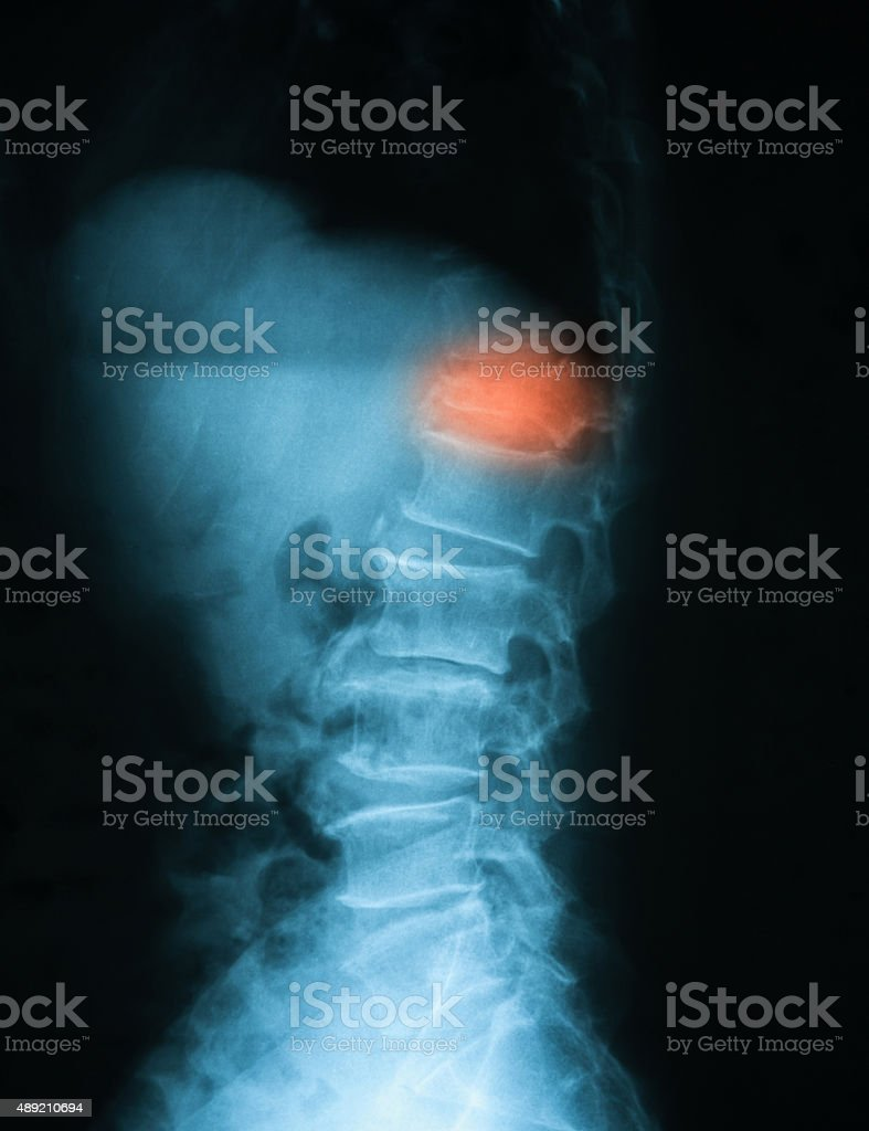 X-ray image of T-L spine, lateral view. stock photo