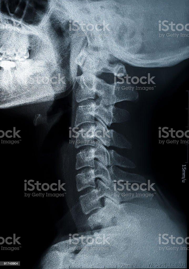 x-ray image royalty-free stock photo