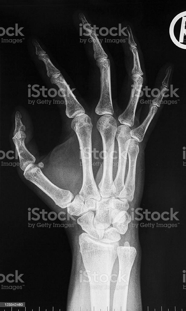 X-Ray Image: Right Hand royalty-free stock photo