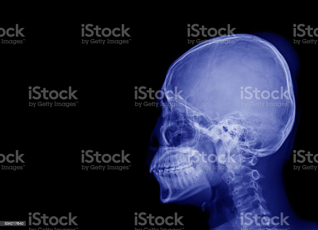 X-ray image side view skull blank area at left side stock photo
