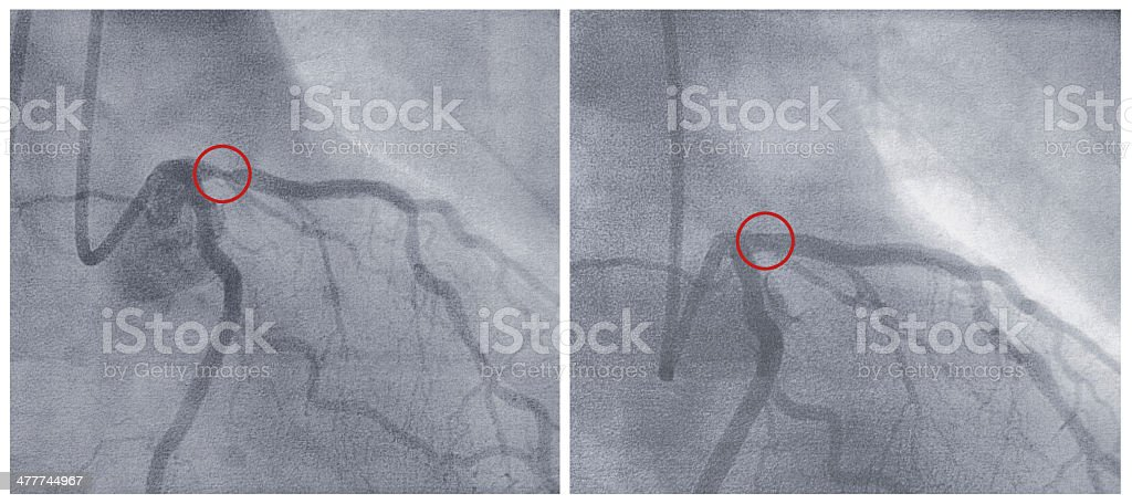 X-ray images before and after a balloon-dilation, Screenshot-prints, motion pictures royalty-free stock photo