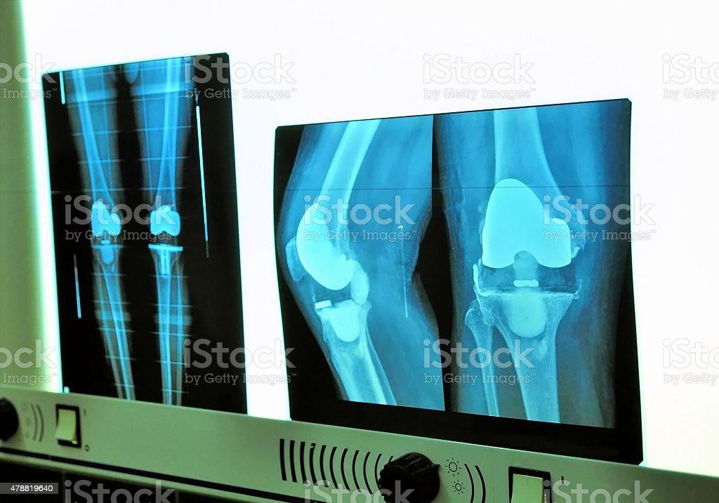 Xray knee prosthesis stock photo