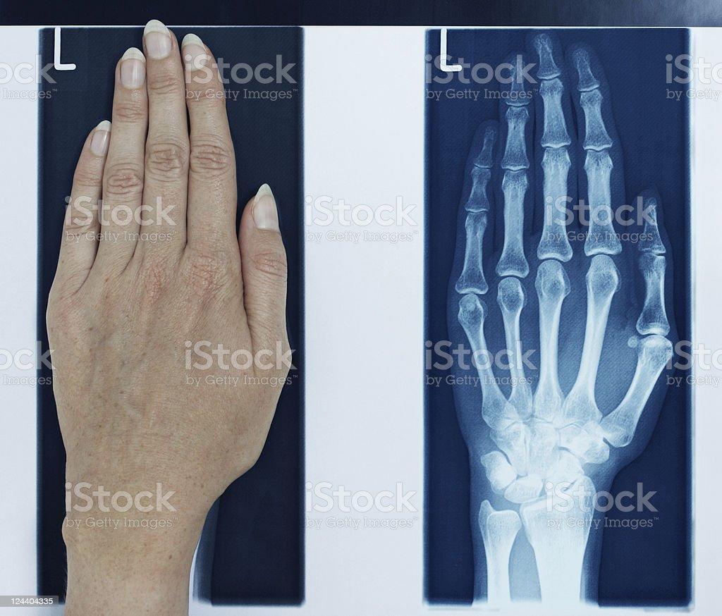 x-ray left hand royalty-free stock photo