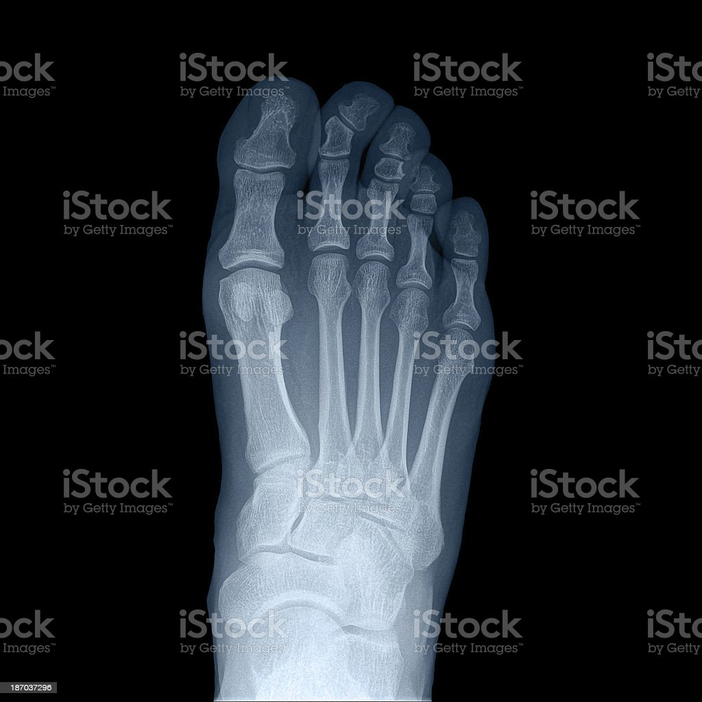 x-ray man's right foot - top view royalty-free stock photo