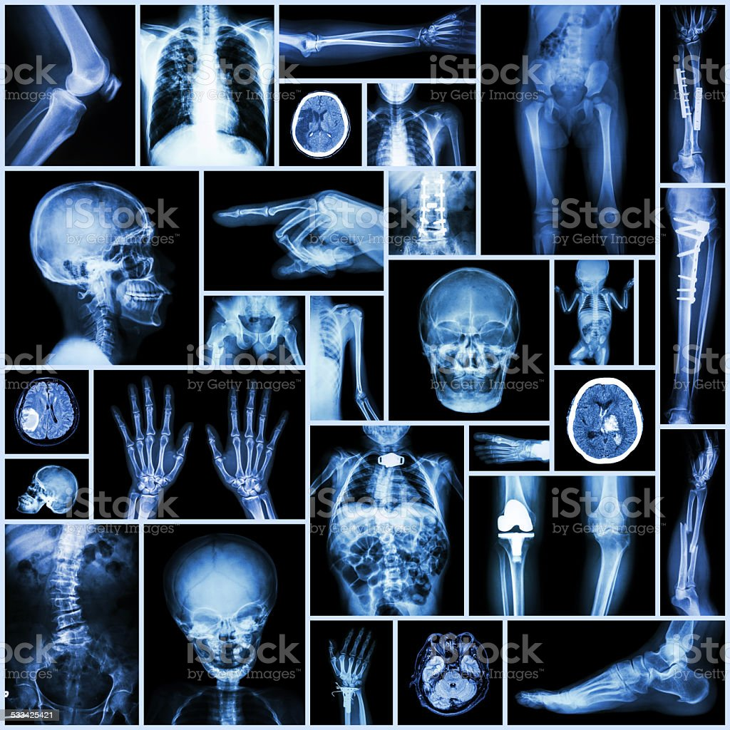 X-ray Multiple part of human,orthopedic surgery and multiple disease stock photo