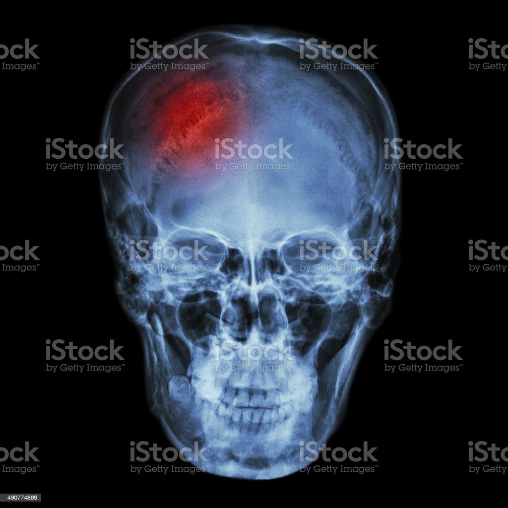 X-ray normal asian skull (Thai people) and headache stock photo