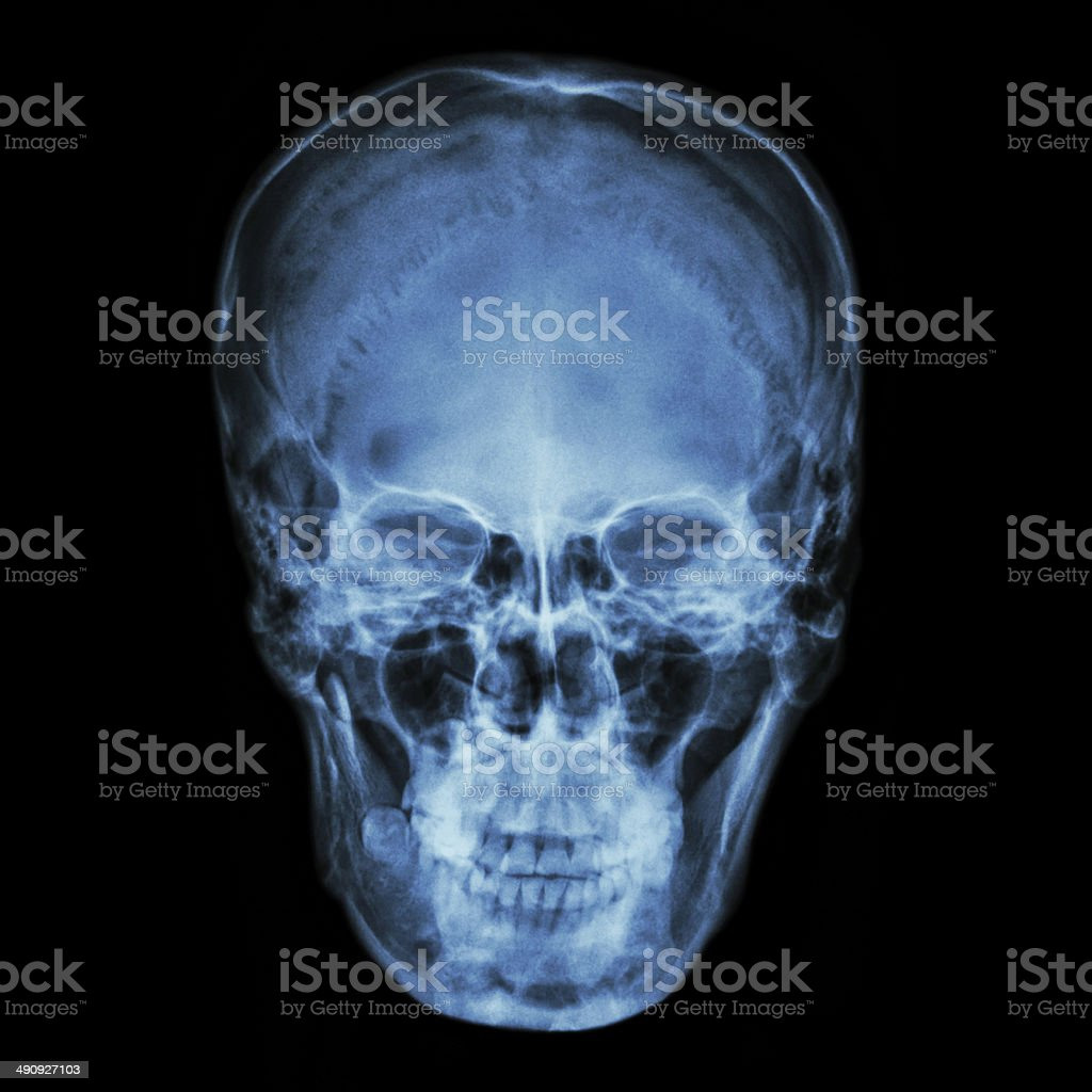 X-ray normal asian skull (Thai people) stock photo