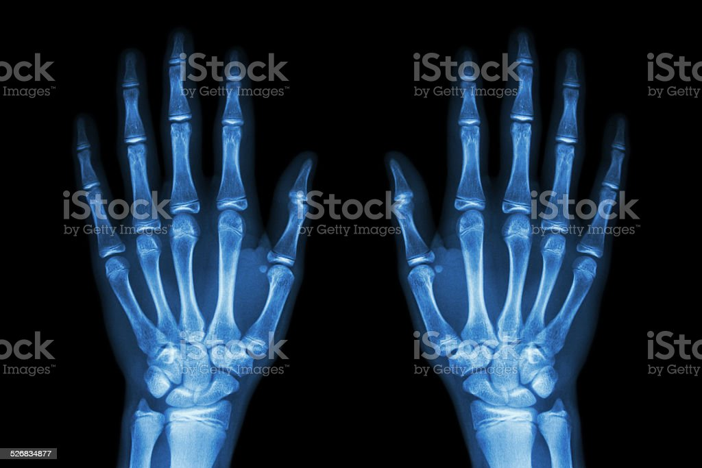 X-ray normal human hands (front) on black background stock photo
