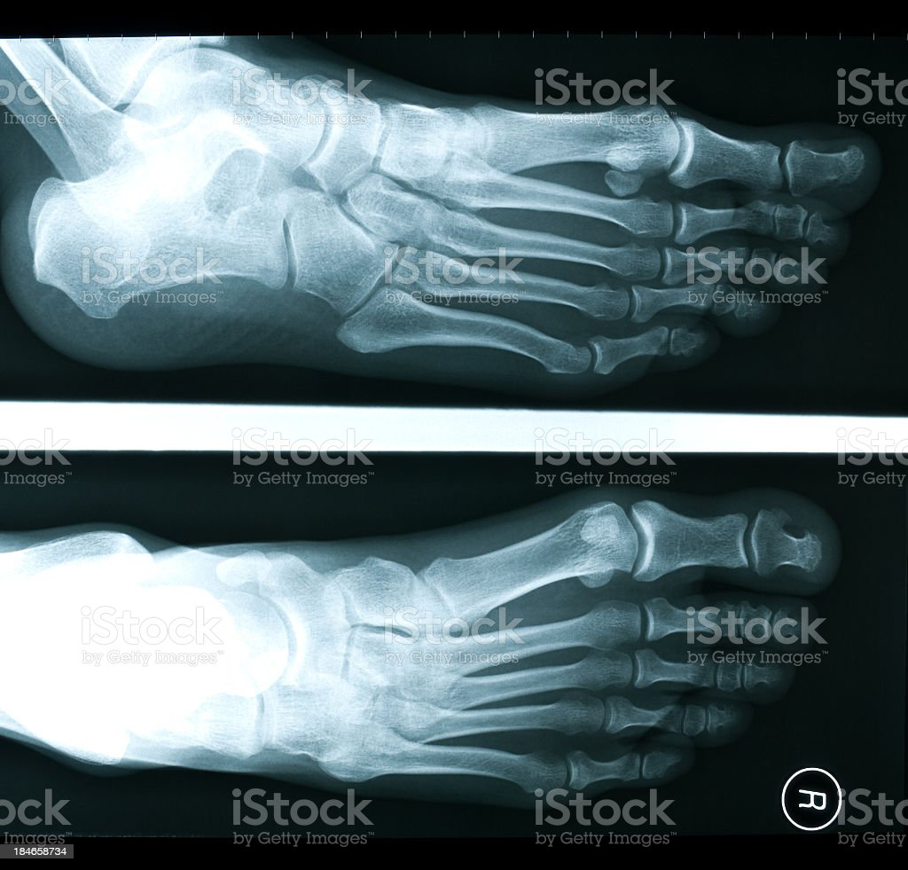 X-ray of 28 year old female foot royalty-free stock photo